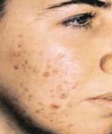 دانلود کتاب درباره بیماریهای شایع پوست و مو